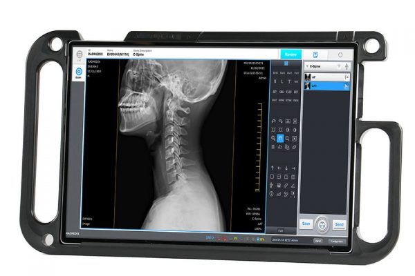 acuity_dr-portable-xray-ppc