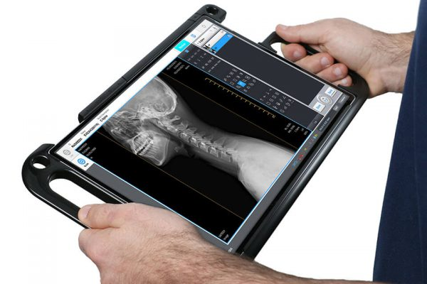acuity_dr-portable-xray-ppc-hands