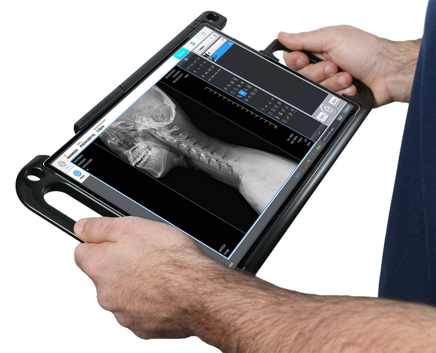The Power of Multi Access point Digital Radiography
