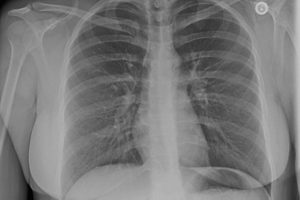 radmedix-human_examples-flat-panel-dr-chest