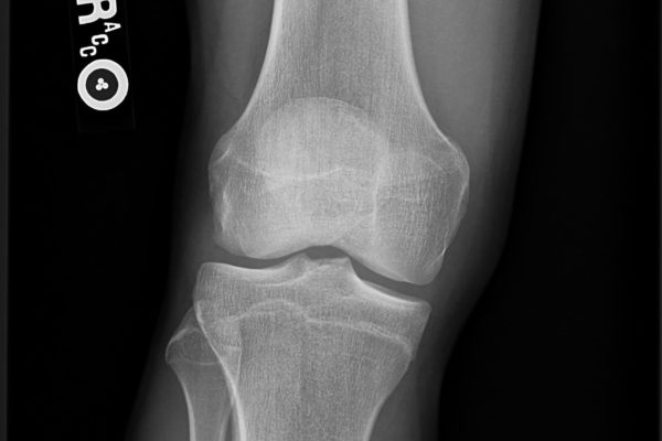 radmedix-human_examples-flat-panel-dr-knee