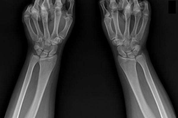radmedix-human_examples-wrists