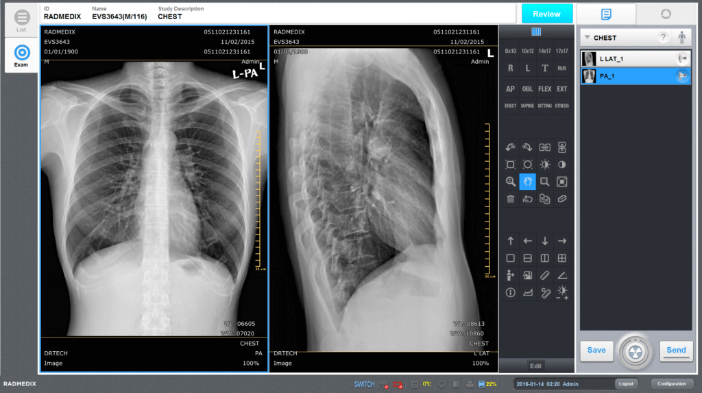radmedix-accuvue_med-chest