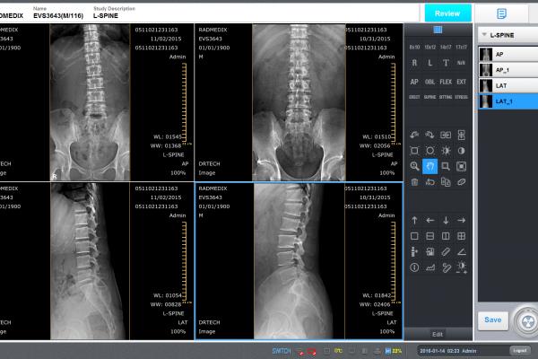 Orthopedic Digital X-Ray Systems - RadmediX Acuity DR