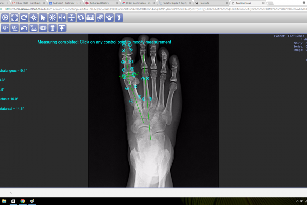 Wireless Podiatry X-Ray