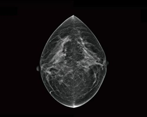 pearl-breast_cancer